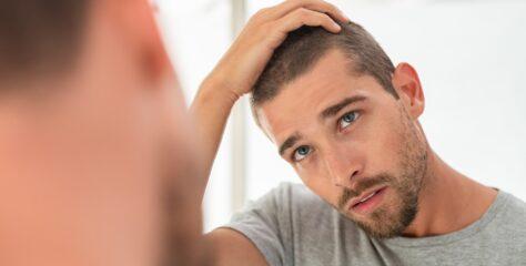 Håravfall och dess orsaker