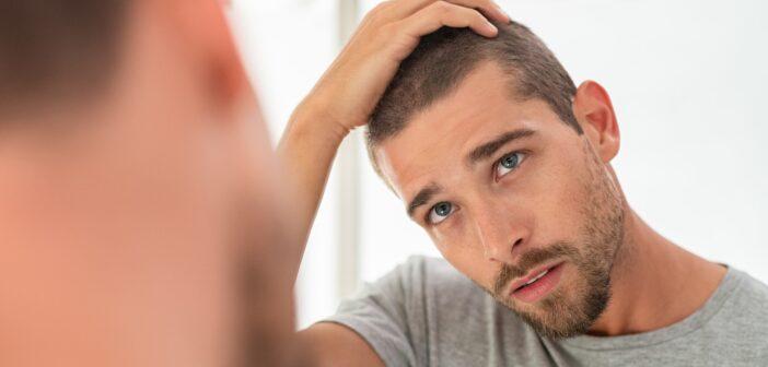 Ung man som ser på sitt håravfall i spegeln
